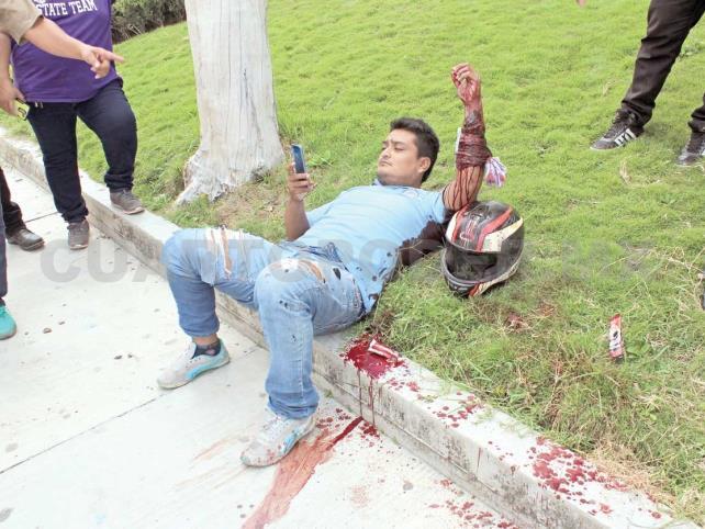 """Motociclista fue embestido por un vehículo """"fantasma"""""""