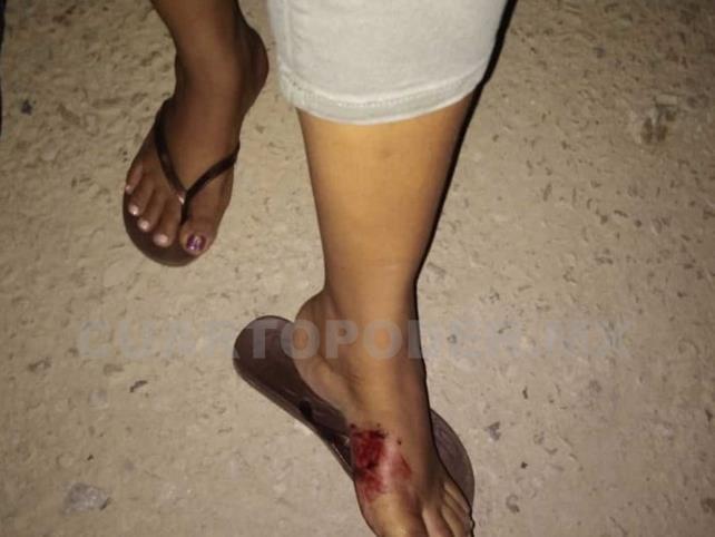 Septuagenario hirió de rozón de bala a mujer
