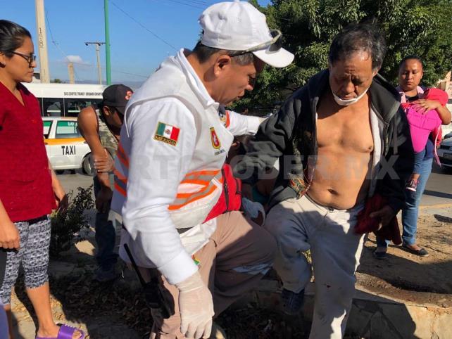 Abuelito y nieto son arrollados por camioneta